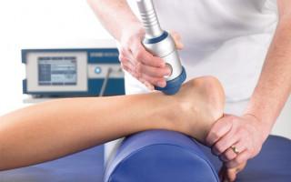 Эффективность, недостатки и процедура ударно волновой терапии (УВТ) при лечении пяточной шпоры