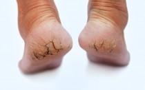 Если полопались пятки — причины и лечение