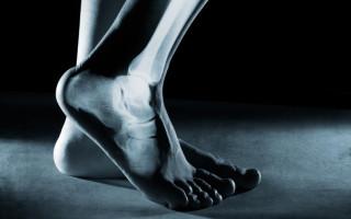 Для чего делают рентген пятки: особенности процедуры и выявление возможных патологий