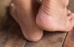 Что можно сделать в домашних условиях с огрубевшими пятками