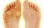Что такое натоптыши на ногах и как от них избавиться