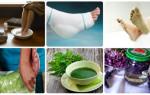 Народные методы и способы лечения пяточной шпоры в домашних условиях