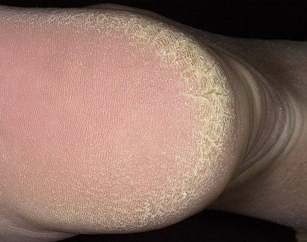 Вид грибка на пятках