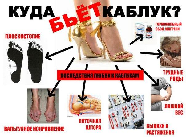 Влияние высоких каблуков на появление пяточной шпоры