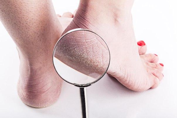 Причины сухой кожи на пятках. Аптечные и народные способы борьбы с сухими пятками