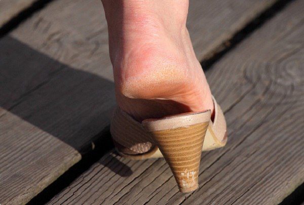 Не удачно подобранная обувь