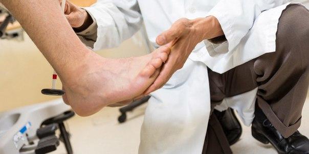 Обследование шпоры у врача ортопеда