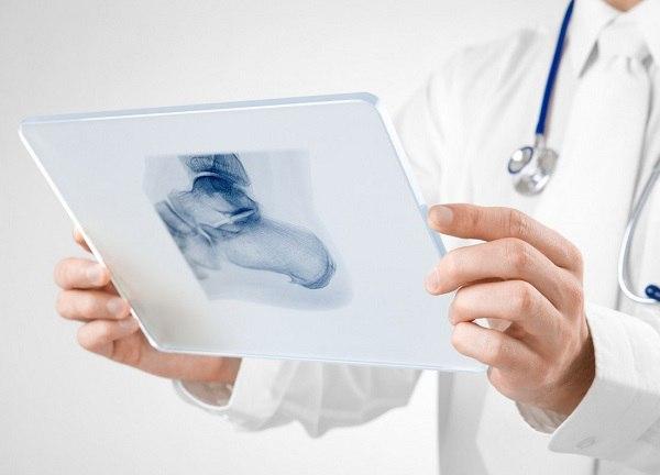 Расшифровка результатов рентгена