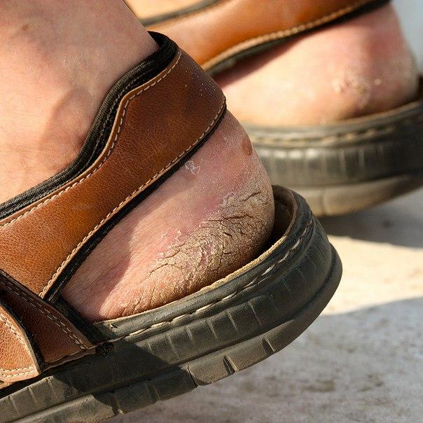 Трещины на пятках от шлепанец и сандалий