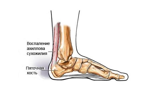 Воспаление ахиллова сухожилия при болях в пятках
