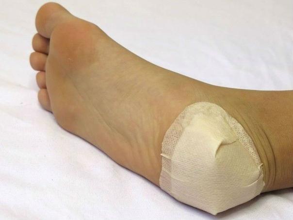 Применение компрессов при болях в пятках