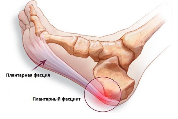 Плантарный фасциит при болях в пятках