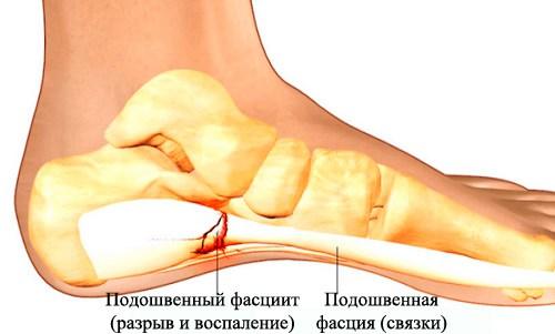 Подошвенный фасциит при болях в пятках