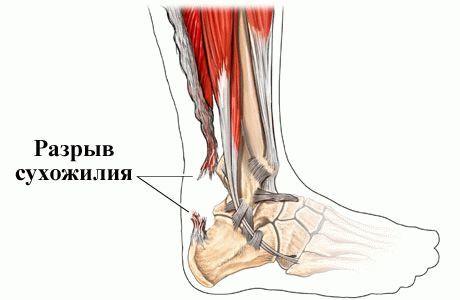 Причины боли и способы лечения ахиллова сухожилия