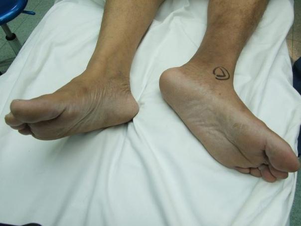 Симптом прилипшей пятки: заболевание требующее безотлагательного лечения