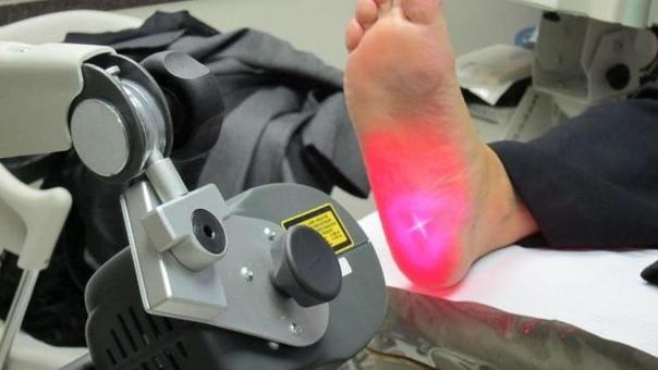 Лазерное лечение пяточной шпоры: что нужно знать перед началом лазерной терапии