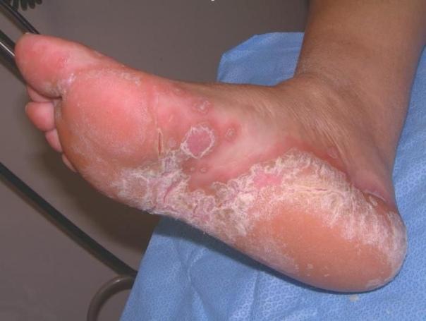 Виды высыпаний, сыпи и точек на пятках и ступнях. Причины и способы лечения