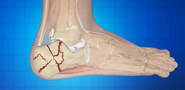 Оказание первой помощи, лечение и реабилитация при переломе пяточной кости