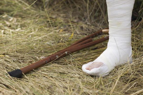 Оказание Первой Помощи,Лечение и Реабилитация при Переломе Пяточной Кости