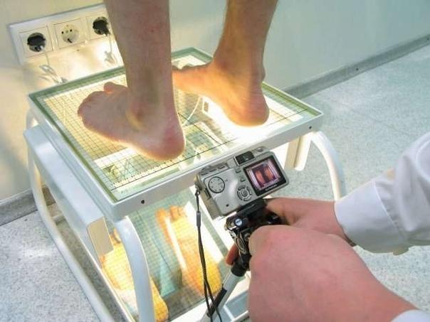 Плантография при вальгусе стопы