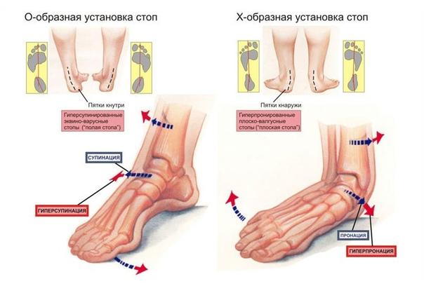 Вальгусная (варусная) деформация ступней и пяток. Причины развития, методы лечения у детей и взрослых