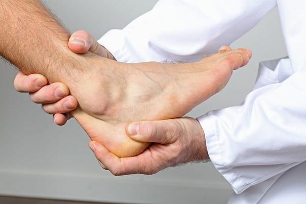 Причины, признаки и методы лечения артроза пяточной кости