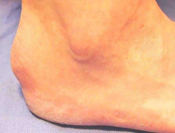 Экзостоз пяточной кости. Причины, симптоматика и методы лечения