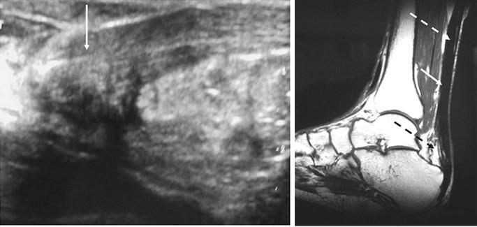 Что такое ахиллово сухожилие и как лечить заболевания и травмы этой части ноги
